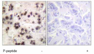 Immunohistochemistry (Formalin/PFA-fixed paraffin-embedded sections) - p63 (phospho S455) antibody (ab63362)
