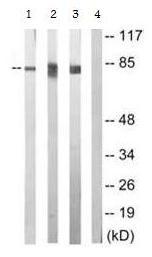 Western blot - PKC epsilon (phospho S729) antibody (ab63387)