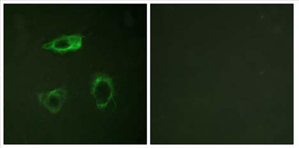 Immunocytochemistry/ Immunofluorescence - CD18 (phospho T758) antibody (ab63388)
