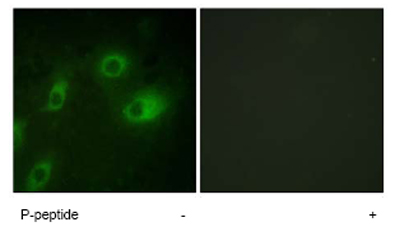 Immunocytochemistry/ Immunofluorescence - Cytokeratin 18 (phospho S52) antibody (ab63393)
