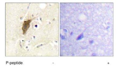 Immunohistochemistry (Formalin/PFA-fixed paraffin-embedded sections) - Mylc2b (phospho S18) antibody (ab63479)