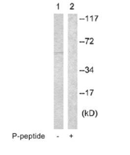 Western blot - IL2 Receptor beta (phospho Y364) antibody (ab63483)