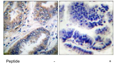 Immunohistochemistry (Formalin/PFA-fixed paraffin-embedded sections) - Caspase 9 antibody (ab63488)