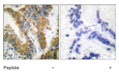 Immunohistochemistry (Formalin/PFA-fixed paraffin-embedded sections) - CrkL antibody (ab63491)