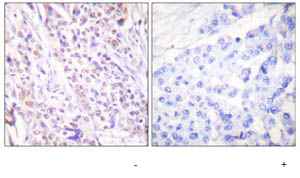 Immunohistochemistry (Formalin/PFA-fixed paraffin-embedded sections) - Rad17 antibody (ab63509)