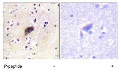 Immunohistochemistry (Formalin/PFA-fixed paraffin-embedded sections) - PAK1 + PAK2 + PAK3 (phospho S144/141/139) antibody (ab63513)