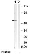 Western blot - SGK1 antibody (ab63527)