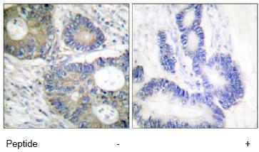 Immunohistochemistry (Formalin/PFA-fixed paraffin-embedded sections) - eIF4EBP1 antibody (ab63529)
