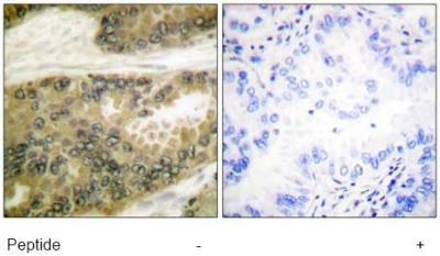 Immunohistochemistry (Formalin/PFA-fixed paraffin-embedded sections) - Cyclin D3 antibody (ab63535)