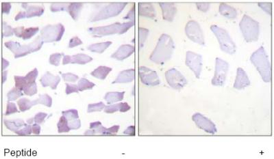 Immunohistochemistry (Formalin/PFA-fixed paraffin-embedded sections) - Anti-IKK alpha + IKK beta antibody (ab63537)