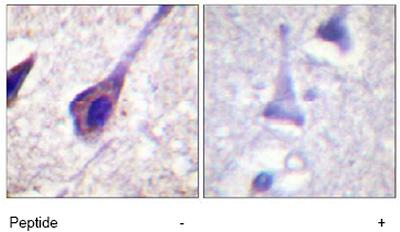 Immunohistochemistry (Formalin/PFA-fixed paraffin-embedded sections) - Bid antibody (ab63541)