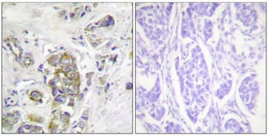 Immunohistochemistry (Formalin/PFA-fixed paraffin-embedded sections) - Integrin beta 4 (phospho Y1510) antibody (ab63546)