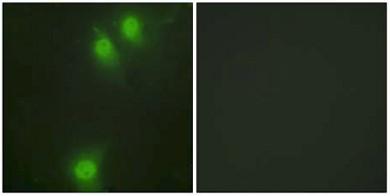 Immunocytochemistry/ Immunofluorescence - NEK9 (phospho T210) antibody (ab63553)