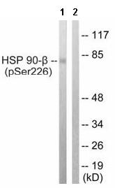 Western blot - Hsp90 beta (phospho S226) antibody (ab63562)