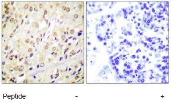 Immunohistochemistry (Formalin/PFA-fixed paraffin-embedded sections) - Smad2 antibody (ab63576)