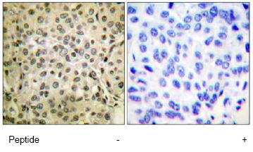 Immunohistochemistry (Formalin/PFA-fixed paraffin-embedded sections) - Smad3 antibody (ab63577)