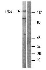 Western blot - nNOS (neuronal) antibody (ab63602)