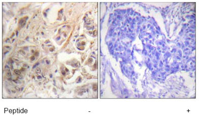 Immunohistochemistry (Formalin/PFA-fixed paraffin-embedded sections) - RSK1 p90 antibody (ab63604)