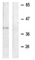 Western blot - CD32 antibody (ab63616)