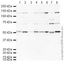 Western blot - SMAD6 antibody (ab63713)