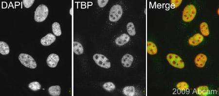Immunocytochemistry/ Immunofluorescence - TATA binding protein TBP antibody (ab63766)