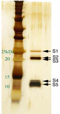 SDS-PAGE - Pertussis toxin protein (ab63830)