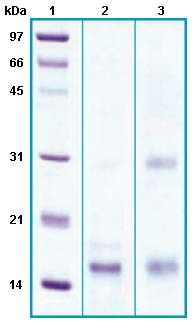 SDS-PAGE - Secretory phospholipase A2 Type V protein (His tag) (ab63846)