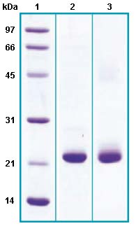 SDS-PAGE - Prostaglandin D Synthase (Lipocalin) protein (His tag) (ab63850)