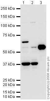 Western blot - p63 antibody (ab63881)