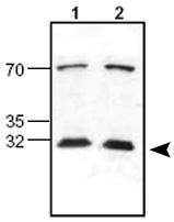 Western blot - Anti-Lipocalin-2 / NGAL antibody (ab63929)
