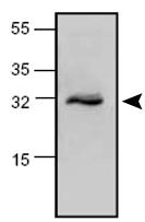 Western blot - MGMT antibody (ab63930)
