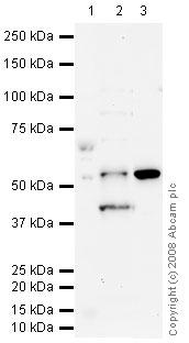 Western blot - BACE1 antibody (ab63954)