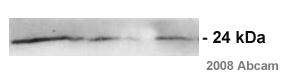 Western blot - HIV1 p24 antibody [5] (ab63958)