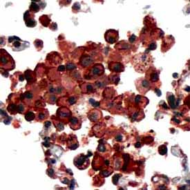 Immunohistochemistry (Formalin/PFA-fixed paraffin-embedded sections) - PDCD6 antibody, prediluted (ab64104)