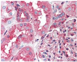 Immunohistochemistry (Formalin/PFA-fixed paraffin-embedded sections) - HSP90B2P antibody (ab64182)