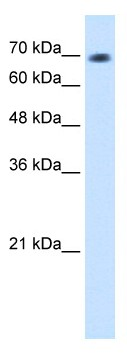 Western blot - L3MBTL2 antibody (ab64422)