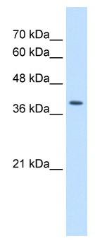Western blot - Unrip antibody (ab64424)