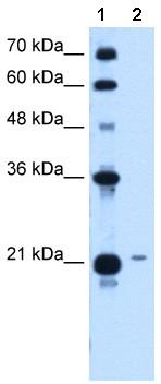 Western blot - TCP10L antibody (ab64426)