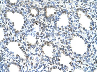 Immunohistochemistry (Formalin/PFA-fixed paraffin-embedded sections) - SLC15A4 antibody (ab64429)