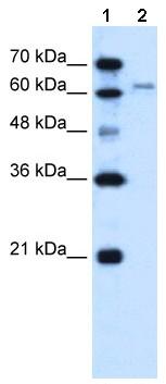 Western blot - SLC15A4 antibody (ab64429)