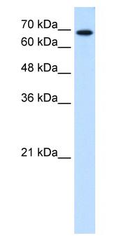 Western blot - Ribophorin II antibody (ab64467)