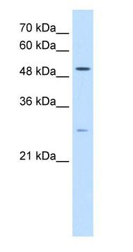 Western blot - RRP1 like protein antibody (ab64468)
