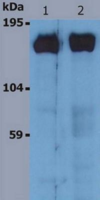 Western blot - SOS1 antibody [SOS-1] (ab64595)
