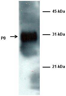 Western blot - Myelin Protein Zero antibody (ab64685)