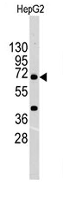 Western blot - BCRP/ABCG2 antibody (ab64757)
