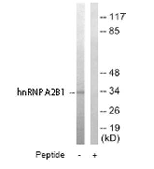 Western blot - hnRNP A2B1 antibody (ab64800)