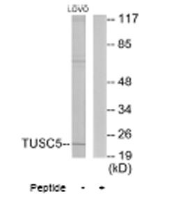 Western blot - TUSC5 antibody (ab64803)