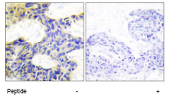 Immunohistochemistry (Formalin/PFA-fixed paraffin-embedded sections) - S6K antibody (ab64804)