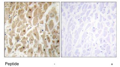 Immunohistochemistry (Formalin/PFA-fixed paraffin-embedded sections) - FOXD3 antibody (ab64807)