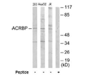 Western blot - ACRBP antibody (ab64809)